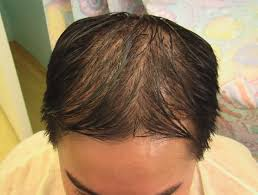 Video About Ethnic Hair Loss And Solutions Los Angeles