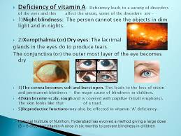 Night Blindness Deficiency By Sg Bhuvan Kumar Vitamins Deficiency Diseases History Of