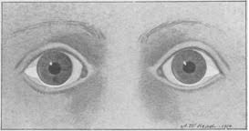 Night Blindness Deficiency A Historical Look At Vitamin A And Night Blindness