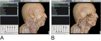 The Anatomy Of The Human Brain Cadavers Beat Computers For Learning Anatomy Msutoday Michigan