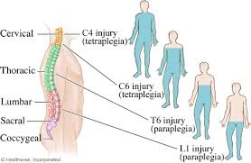 How Do You Get Bed Sores Living With A Spinal Cord Injury Topic Overview