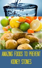 21 best kidney stone prevention images on pinterest healthy