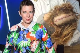 can you color hair after brain surgery katie hopkins shares graphic image after brain surgery as she