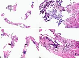 lepidic pattern meaning diagnosis of lung cancer in small biopsies and cytology