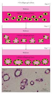 D Collagen scheme of 3 d collagen gel culture system and histology of thyroid