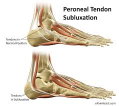 Ankle Anatomy Ligaments Peroneal Tendon Subluxation Treatment Recovery Exercises