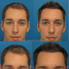 hair plugs for men hair transplantation procedure before and after result images with