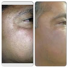 Pumpkin Enzyme Peel Before And After before and after pictures of 5 weekly treatments with pumpkin