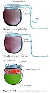 pacemaker chambre les stimulateurs cardiaquesbrochure d