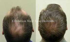 before and after hair growth treatment photos