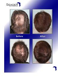 hair style for trichotillomania dr cam simmons 2681 grafts for a lady that recovered from