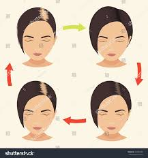 Women Hair Loss Treatment Female Hair Loss Stages Set Woman Stock Vector 422034388
