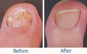 is laser treatment for nail fungus right for you mapleview
