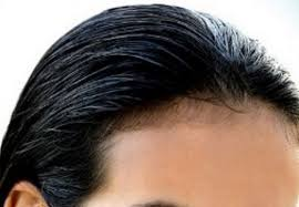 womens hairstyles for receding hairlines receding hairline in women causes treatment young black women