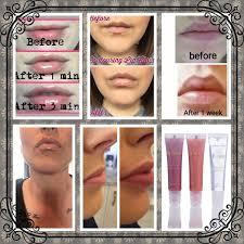 Pumpkin Enzyme Peel Before And After by Kats Beauty Katsbeauty4 Twitter