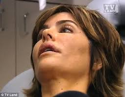 how does lisa rinna fix her hair lisa rinna manages to smile again after her painful lip reduction