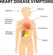 Borders Of The Heart Anatomy Heart Disease Symptoms Stock Vector Art 469191488 Istock
