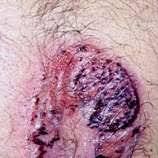 beware of black henna doctors warn newstimes