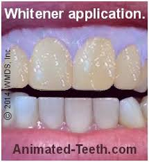 how to use teeth whitening gel with light is a bleaching light really needed for teeth whitening treatments