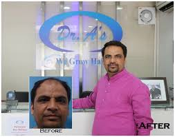 transplant hair second round draft dr a s clinic world s 1 ranked hair transplant centre hair