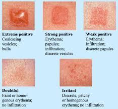 titanium allergy testing suddenly allergic