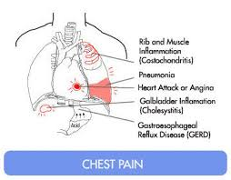 chest pressure things you didn t