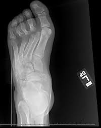 Subtalar Joint Fracture Fracture Dislocation The Foot And Ankle Online Journal