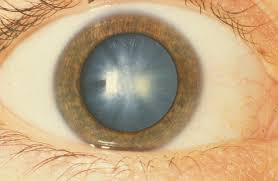 Can Cataracts Lead To Blindness Study Steroid Shows Potential For Treating Cataracts Without