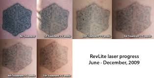 ink regret my personal experience with laser tattoo removal page 2