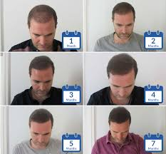 hair transplant month by month pictures hair transplant patient timelines hasson wong