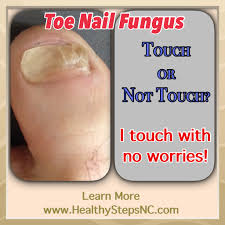 toenail fungus home remedies for better looking nails toe nail fungus u2013 mts protect yourself healthy steps continuing