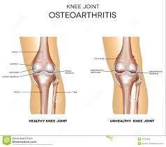 Right Knee Anatomy Osteoarthritis And Normal Joint Stock Vector Image 54350486