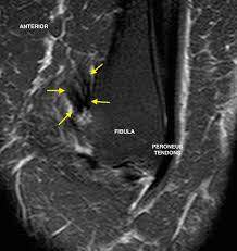 Ankle Ligament Tear Mri Mri Pre U0026 Post Stemhealth Syndesmotic Ligament Injury U0026 Healing