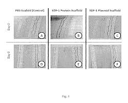 patent us8679477 use of sdf 1 to mitigate scar formation
