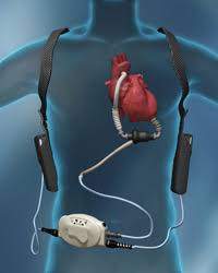 what is an lvad how does it work mylvad