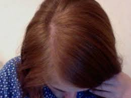 rogaine for women success stories minoxidil success story in the making heralopecia forums