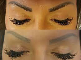 semi permanent makeup laser removal yorkshire