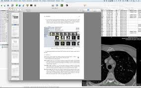 Home Design 3d User Guide by Osirix Osirix User Manual