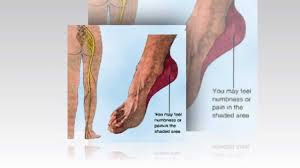 Foot Pain Map Top Foot Anatomy Images Learn Human Anatomy Image