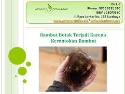 obat rambut penumbuh rambut botak mengatasi rambut rontok mengatasi rambut rontok parah obat rambut botak alami dan ampuh