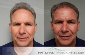 antony cottons hair transplant 10 best hair transplant near towson md images on pinterest hair