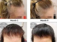 rogaine for women success stories should i use rogaine for thinning hair best hair style 2017