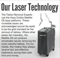 the tattoo removal experts in london greater london w4 5ne
