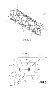 Google Maps Ralph Mueller by Patent Us8668732 Surface Treated Bioerodible Metal