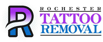 rochester tattoo removal rochester tattoo removal