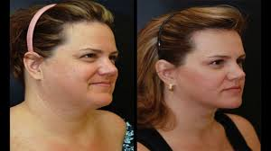 hairstyles to disguise turkey neck simple ways to hide double chin with makeup youtube