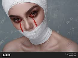 scary with blood from her eyes and white bandage on head and