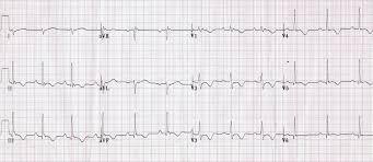 strain pattern ecg meaning ems dysrhythmia reference medicine flashcards memorang