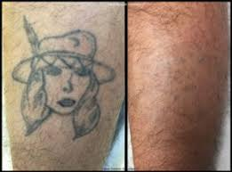 tattoo removal cost va dc md laser smooth solutions
