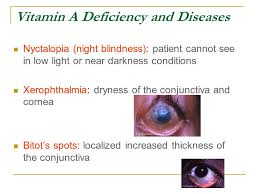 Night Blindness Caused By Vitamin A Deficiency How Can Vitamin A Deficiency Cause Night Blindness Best Blind 2017
